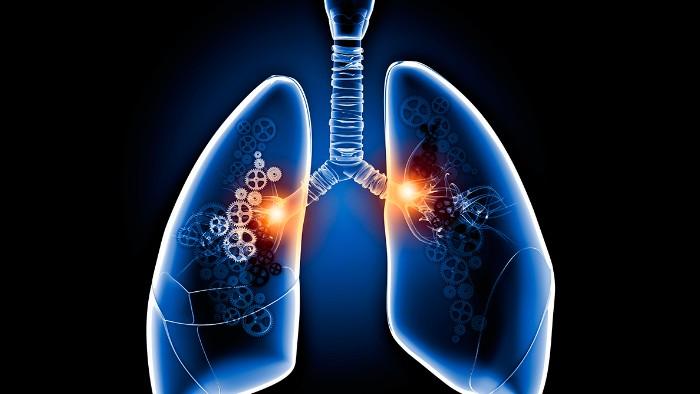 <h1>Así afecta COVID 19 a los pulmones</h1>